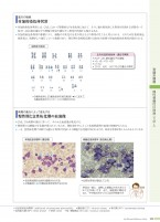 病5-2版_12_骨髄増殖性腫瘍.indd