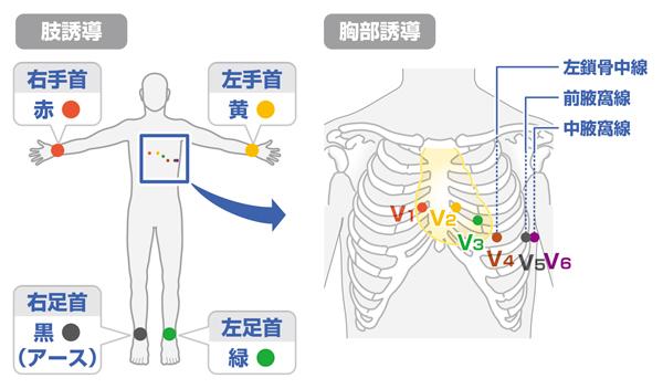 心電図 電極の付け方 肢誘導と胸部誘導をフルカラーで