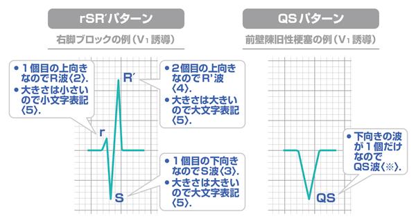 心電図 QRS波の解説