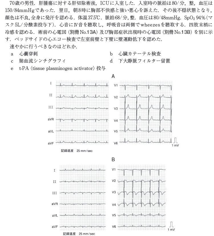 医師国家試験 115A40 問題文