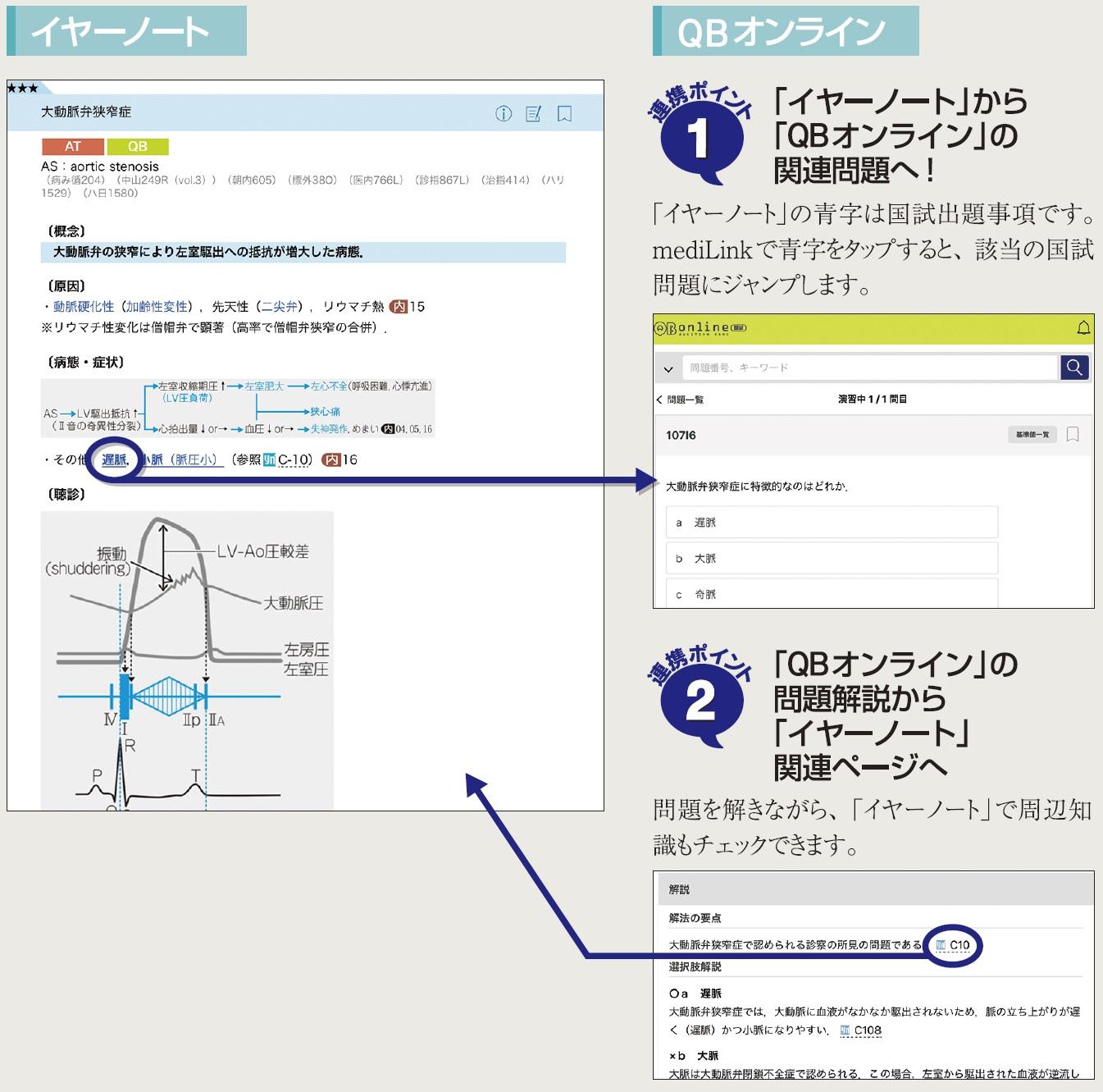 イヤーノートアプリ QBオンライン連携、国試出題箇所の青字で演習