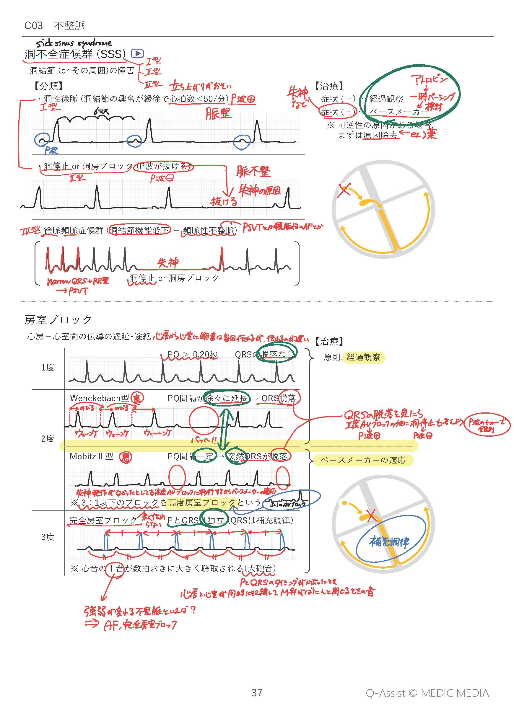 Q-Assistメインテキストへの書き込み例 不整脈